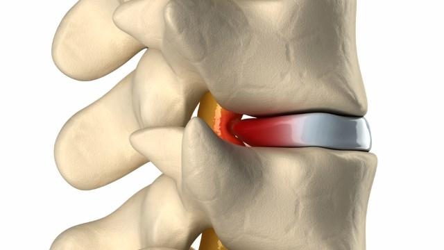 Cause della sciatica: ernia del disco